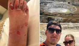 Νίσυρος: Τουρίστας τσουρουφλίστηκε στο ηφαίστειο – Βγήκε ατμός 165 βαθμών Κελσίου